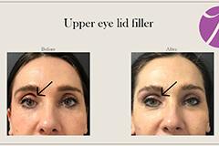 Upper Eye Lid Filler