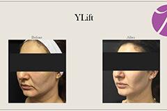YLift