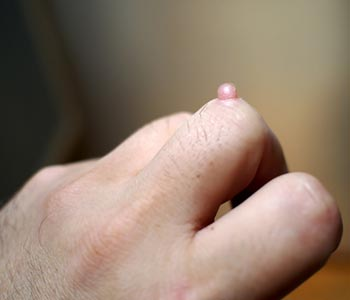 Common Warts and treatments in Brooklyn area