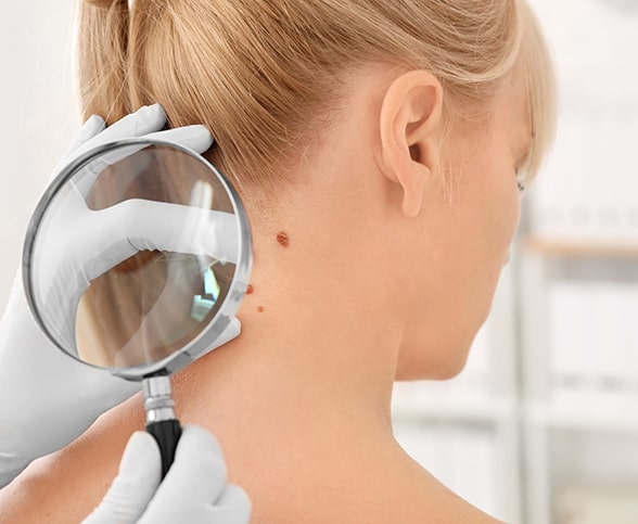Surgical dermatology at Khrom Dermatology in Brooklyn, NY