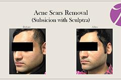 Acne Scars Treatments 1