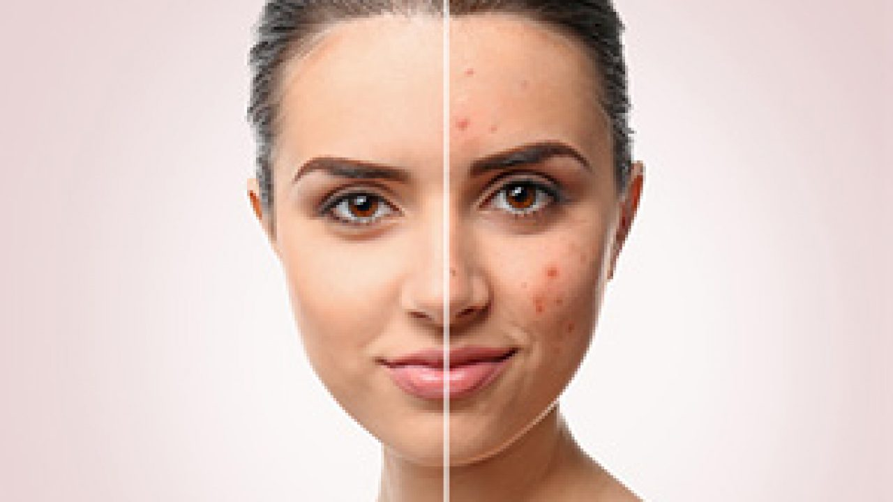Fda Clears First Topical Minocycline For Acne Vulgaris