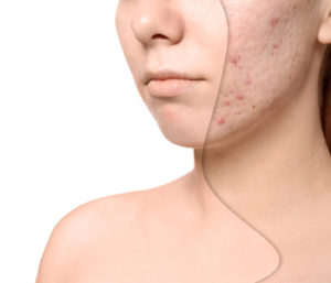 Major survey spotlights novel factors influencing acne