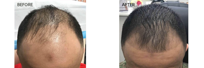 PRP Rejuvenation Results - 01