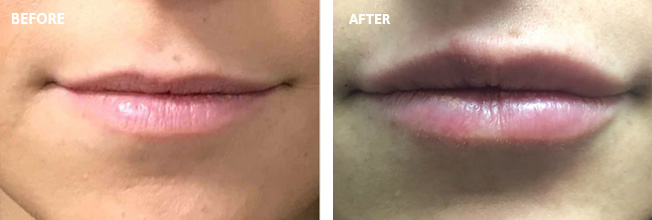 Juvederm Before and After 5