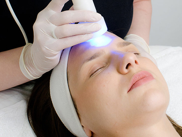 Laser and light-based therapies in Brooklyn, NY: Effective removal of stubborn melasma, hyperpigmentation