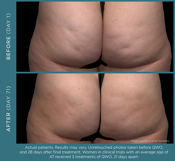 QWO™ cellulite treatment before & after results