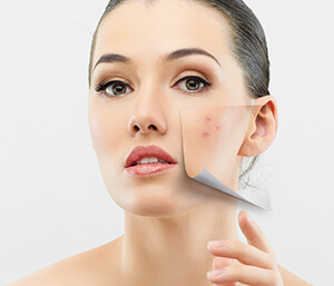 Dermatologist Uses Sculptra for Acne Scars in Brooklyn NY Area